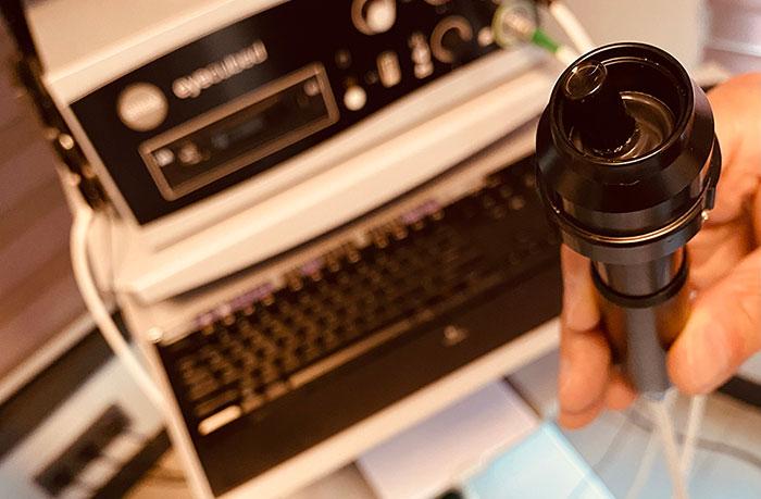 Ultrasonik-biyomikroskopi-(UBM-kapak)